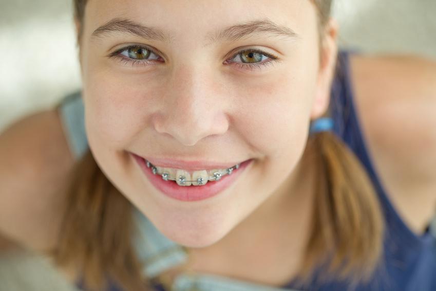 Zahnspange Girl Zahngesundheit Halle