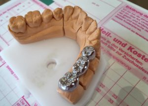 Metallbrücke Zahnarztpraxis Roger Barz Halle