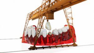 Implantatlegung Zahnarzt Roger Barz Halle