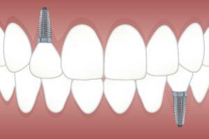 Ansicht Implantat Zahnarzt Roger Barz Halle