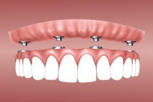 Prothese Implnatat Zahnarzt Roger Barz Halle
