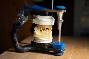 Artikulation Zahnarzt Roger Barz Halle