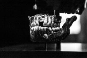 Gebiss düster Zahnarzt Roger Barz Halle