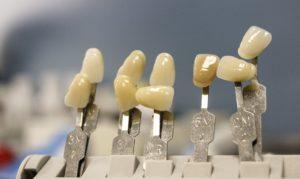 Zahnfarbbestimmung Zahnarzt Roger Barz Halle