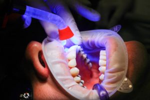 Zahnaufhellung Zahnarzt Roger Barz Halle