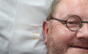 Akupunktur  Zahnarzt Roger Barz Halle